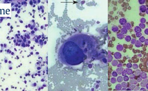 Haut- und Unterhauttumoren – Wichtige mesenchymale Tumoren bei Hund und Katze (Teil 2)